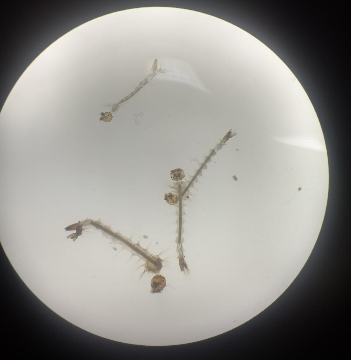 Mosquito larvae under a light microscope. cc Emmanuel Kotey.